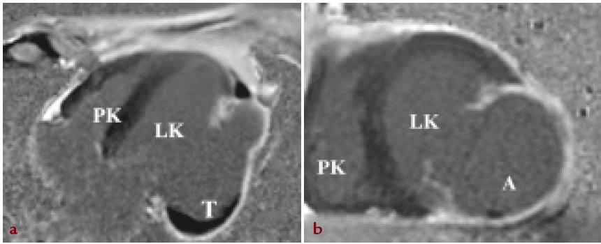 Zobrazení magnetickou rezonancí srdce. A: 4dutinová projekce na dlouhou osu levé komory srdeční s patrným objemným aneuryzmatem (A) ztenčené laterální stěny levé komory srdeční v kinematických sekvencích (TrueFISP CINE) s dyskinezí uvedených segmentů a patrným nástěnným trombem v bazálních segmentech aneuryzmatu (T). V kontrastním zobrazení (Gadolinium- DTPA) patrné pozdní sycení stěny v celém rozsahu aneuryzmatu odpovídající transmurální jizvě. B: zobrazení levé komory srdeční v krátké ose.