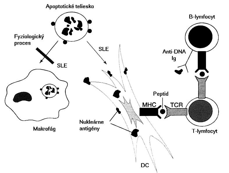 Možný mechanizmus etiopatogenézy pri SLE Pri SLE sa nedostatočne odstraňujú apoptotické telieska, čo umožní dendritovým bunkám vo zvýšenej miere prezentovať nukleárne antigény. Dendritové bunky aktivujú T-lymfocyty, ktoré potom kooperujú s B-lymfocytmi a stimulujú ich, aby produkovali autoprotilátky s následným vývojom zápalových procesov Fig. 2. Possible etiopathogenetic mechanism of SLE In SLE, apoptotic bodies are not removed sufficiently and consequently, dendritic cells can present nuclear antigenes to a greater extent. Dendritic cells activate T lymphocytes which in turn cooperate with B lymphocytes and stimulate them to produce autoantibodies with subsequent development of inflammatory processes