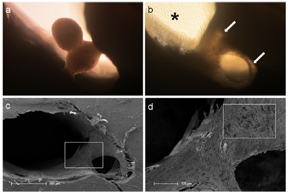 Tissue-like behavior of human pulp sphere cells. Figure (a) shows merging pulp-spheres in a human root canal model after five days. After 28 days of cultivation the two spheres merged, cells grew out of the spheres and coated the root dentin walls (white arrows). (b) Outgrowing cells also covered the underlying polystyrene culture dish and built up a dense cell layer (black asterisk). SEM investigation of the merged spheres (c and d) represents the even surface of the new cell construct and the widespread coverage of the root canal walls (c) as well as the randomly distributed different sized particles (d).