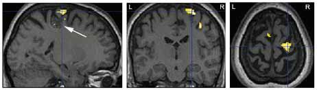 Výsledek fMR vyšetření k objasnění anatomického vztahu mezi primárním motorickým kortexem pro levou ruku (žlutá barva; p < 0,05 FWE corr.) a strukturální lézí (kavernomem) na dně sulcus centralis vpravo – označena šipkou (pacient 5).