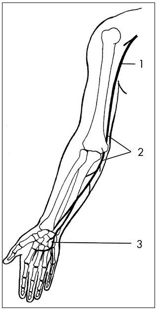 N. ulnaris – průběh a místa zevní komprese : 1 – v axile, 2 – v širší oblasti lokte, 3 – na zápěstí a v dlani. Fig. 1. The ulnar nerve – course and sites of external compressions: 1 – in the axilla, 2 – in a broader elbow region, 3 – in the wrist and in the palm.