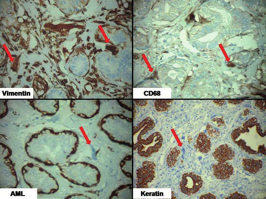 Fig. 3. Immunohistochemical stains: Stromal giant cells are positive for vimentin (x 400) and CD68 (x 400); negative for alpha smooth muscle actin (x400) and cytokeratin (x200) (arrows).