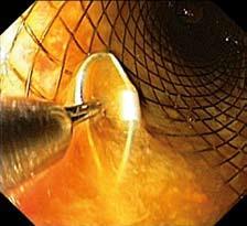 Stent s očkem vývazového lanka pro extrakci zachyceným do extraktoru (endoskopický obraz). Fig. 11. Stent with a loop of an unbinding cable for extraction, attached to the extractor (endoscopic image).