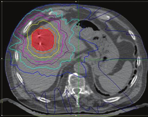 Pacient 2. Stereotaktický plán radioterapie hepatálnych metastáz s implantovanými zlatými zrnami