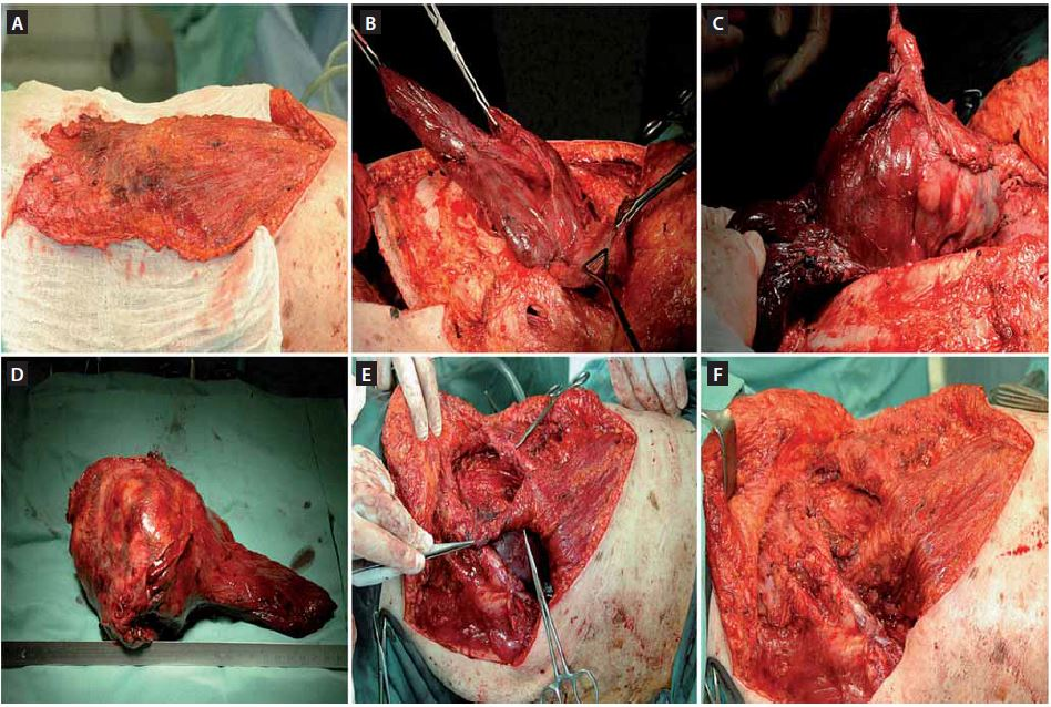 Fig. 2. Intraoperative pictures. A. preparation of the muscular fl ap; B, C. resection of the tumor with the diaphragm; D. the resected tumor; E, F. the diaphragm repair with the muscular fl ap.