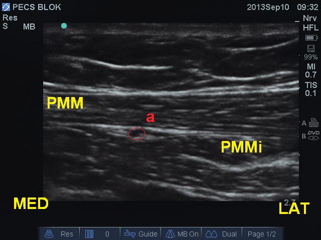 Obr. 9a Zobrazení anatomických struktur při pecs I bloku PMM – m. pectoralis major, PMm – m. pectoralis minor, Pl – pleura, A – a. thoracoacromialis