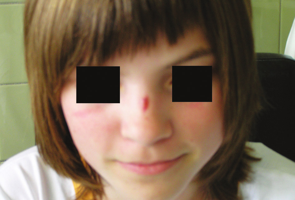 Fig. 1. The scar on the nasal dorsum is the external opening of the nasal dermoid cyst
