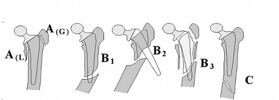 Schéma 2 Klasifikace podle Duncana z roku 1995