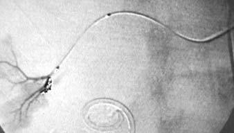 Embolizace poraněné cévy kovovými mikrospirálkami.