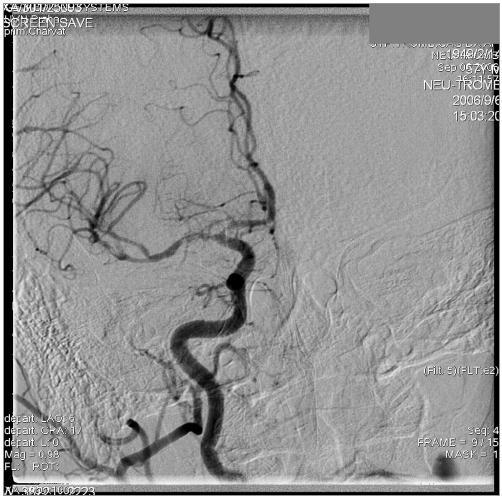 Kontrolní DSA pravé ACC v AP projekci po mechanické embolektomii, dobře zprůchodněná hlavní větev. Obtékané, drobné tromby v M1 i M2.