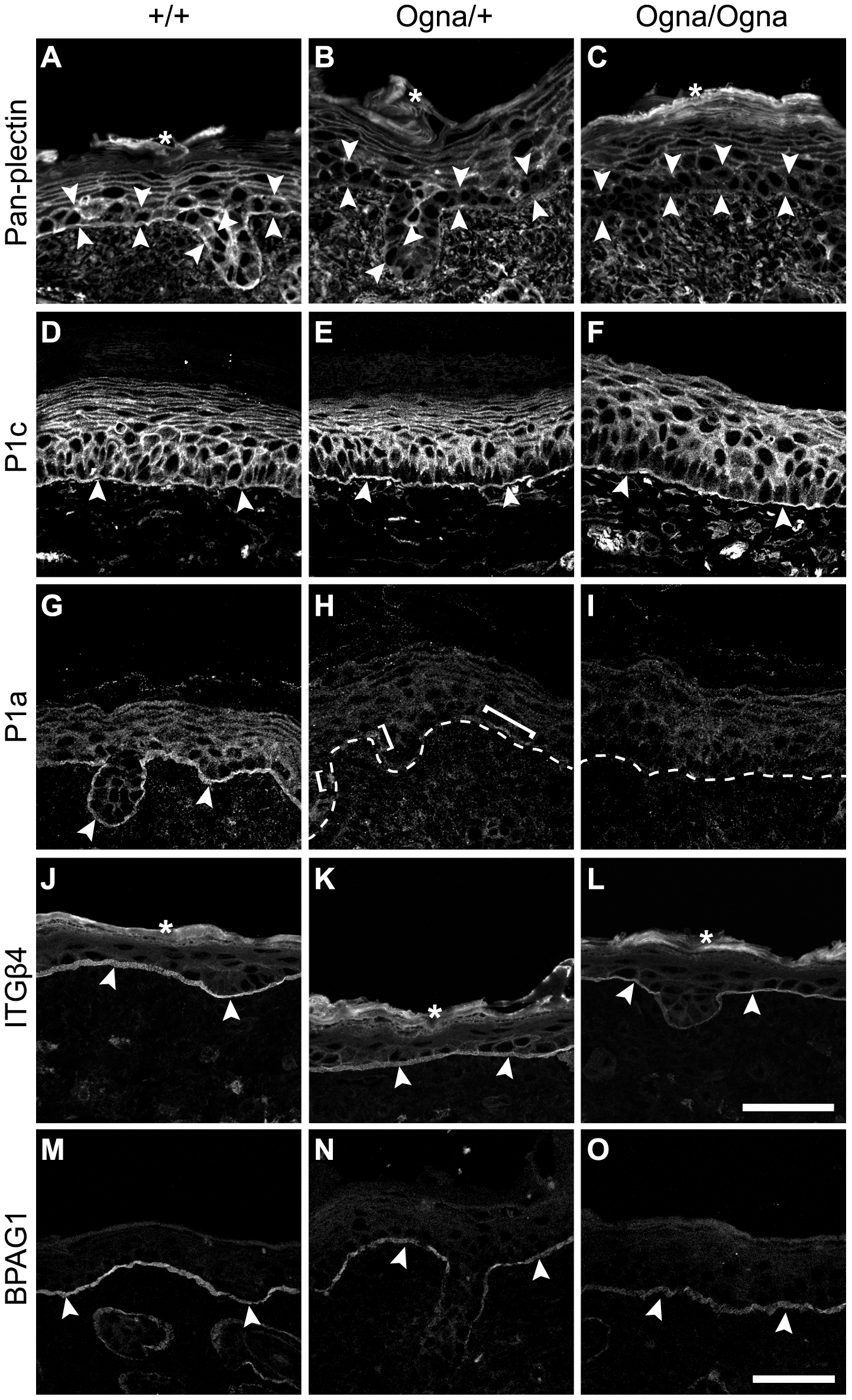 Immunolocalization of HD proteins on frozen leg skin sections from 1-day-old wild-type and mutant mice.