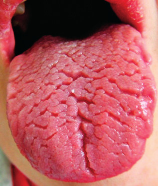 Brázdy sú na celom tele jazyka a porušujú celistvosť aj smerom na hrany jazyka