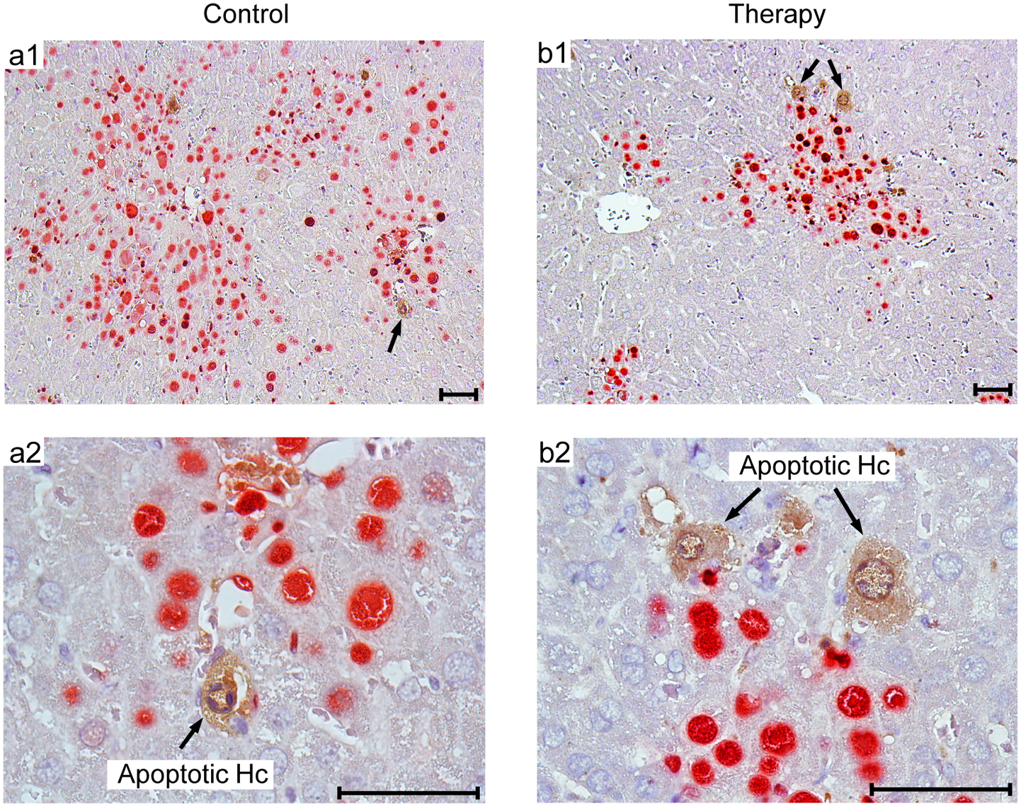 Human NLV-specific T cells do not exert an immunopathology in terms of enhanced apoptosis or necrotic/necroptotic lesions outside of foci of infection.