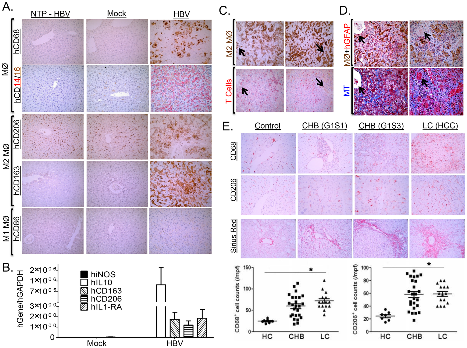 HBV-induced liver disease and immune impairment is associated with M2-like macrophage activation.