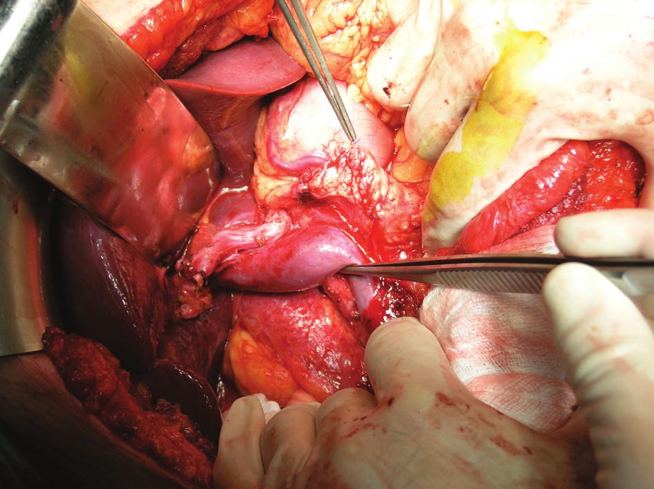 Peroperační obrázek znázorňující stav po provedení PDE se standardní lymfadenektomií Fig. 1. Intraoperative view, showing a condition following PDE with standard lymphadenectomy