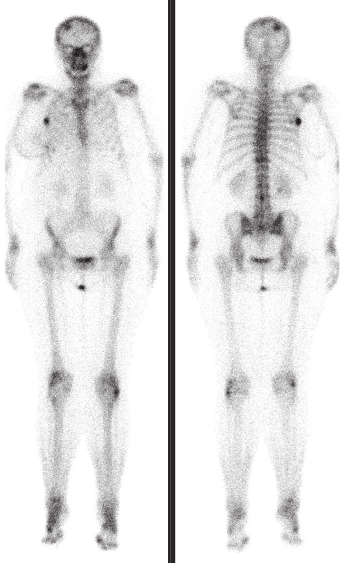 """Poslední scintigrafie skeletu provedená po dalších 5 měsících ukazuje výraznou regresi všech ložisek, nově se objevuje ložisko v dolní čelisti vpravo v důsledku její nekrózy. V kontextu těchto vyšetření jsme nález na druhé scintigrafii hodnotili jako flare fenomén. Kostní scintigrafie je velmi citlivá metoda pro detekci kostních abnormalit, zejména metastáz u pacientů se zhoubnými nádory. <sup>1</sup> Je schopná zachytit 10% změnu v obratu kostních minerálů, zatímco skiagrafie vyžaduje pro detekci alespoň 50% demineralizaci. <sup>2</sup> Kostní sken je také schopen detekovat kostní metastázy až o 18 měsíců dříve než skiagrafie. Nevýhodou je, že kostní scintigrafie zobrazuje nespecifickou reakci kostní tkáně na rostoucí metastázu (nikoli metastázu samotnou), interpretace v případě jiných kostních chorob (degenerativních změn, zánětu, Pagetovy choroby nebo úrazu) může být obtížná. Rovněž se může po zahájení protinádorové terapie včetně léčebné aplikace radionuklidů <sup>3</sup> objevit přechodné zhoršení nálezu na kostní scintigrafii nebo zvýšená hladina ALP u pacientů, u nichž je odpověď na léčbu dobrá. <sup>4</sup> Tato situace se nazývá flare fenomén (""""vzplanutí"""" – imituje zhoršení nálezu, ačkoli je způsoben reparací kostní tkáně v místě rostoucí metastázy, která byla účinnou léčbou ovlivněna). Podobný fenomén se však vyskytuje i u scintigrafie (PET) s <sup>18</sup>F-FDG, označuje se termínem metabolický flare. <sup>5,6</sup> Oba tyto fenomény je nutno brát v úvahu při hodnocení léčebné odpovědi podle kritérií RECIST. <sup>7</sup>"""
