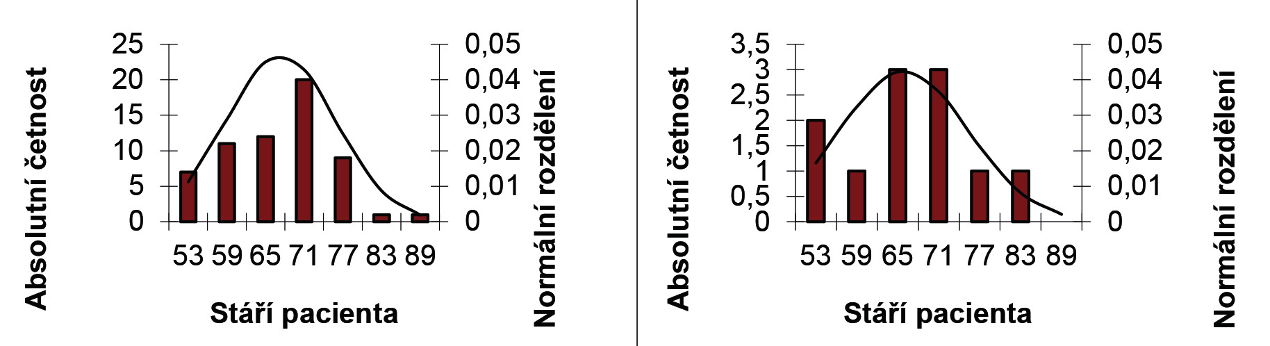 Histogram a Gaussova křivka výskytu onemocnění pacientů a) s benigním nádorem a b) s maligním nádorem podle nálezu předoperační histologie Graph 1: Histogram and Gaussian curve of incidence of patients with a) benign tumours and b) malignant tumours according to preoperative histological examination