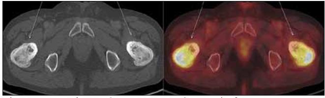 PET-CT zobrazení femuru, transversální řez. Oba femury mají nepravidelnou, převážně sklerotickou strukturu spongiózy s osteolytickými okrsky, v těchto místech je i jasný hypermetabolizmus glukózy.