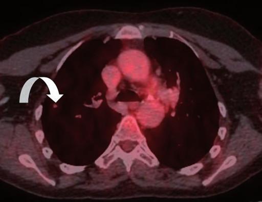 PET/CT zobrazení plicního non-avidního ložiska z listopadu 2014.