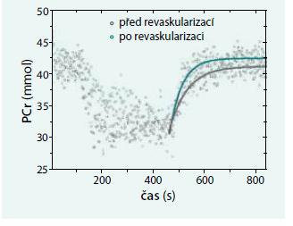 Změny zátěžových parametrů MRS lýtkových svalů u pacienta po revaskularizaci.