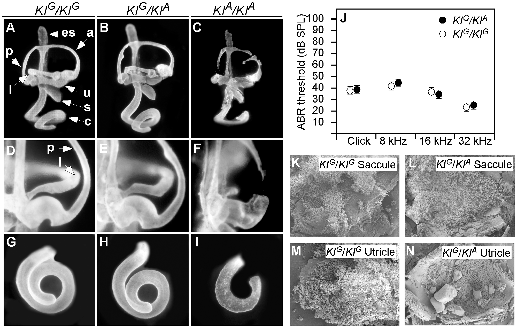 Inner ear morphology, hearing thresholds, and otoconia of wild-type (<i>KI<sup>G</sup></i>) and <i>Tw</i> (<i>KI<sup>A</sup></i>) knockin mice.