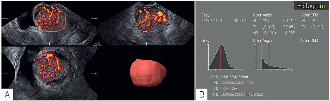 Trojrozměrný ultrazvuk (objektivní zobrazení cévní perfuze)