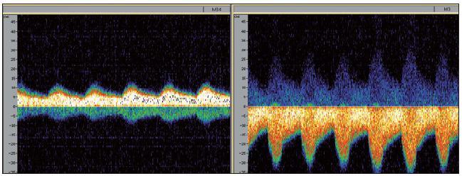 Průtok bypassu byl verifikován peroperačně pomocí TCD. Posílený tok periferní části acceptora směrem od sondy distálně (obrázek vlevo), obrácený tok směrem centripetálně v proximální části přijímací cévy (obrázek vpravo).