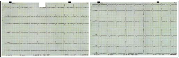 Elektrokardiografický záznam pacientky z 25. 2. 2003 bezprostředně po expozici chladu.