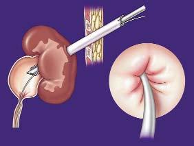 Schéma 2. Perkutánního renálního přístupu je dosaženo vhodným horním nebo středním kalichem ledviny.