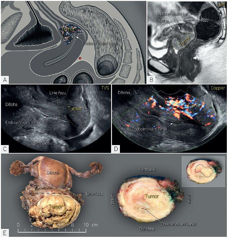 Zobrazení velkého dlaždicobuněčného karcinomu ultrazvukem a magnetickou rezonancí