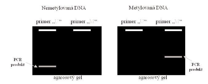 Elektroforetické vyhodnocení MSP Legenda: Je-li DNA nemetylovaná, vzniká PCR produkt po reakci se setem primerů U, který je specifický pro nemetylovanou DNA. Je-li DNA metylovaná, vzniká PCR produkt po reakci se setem primerů M, který je specifický pro metylovanou DNA.