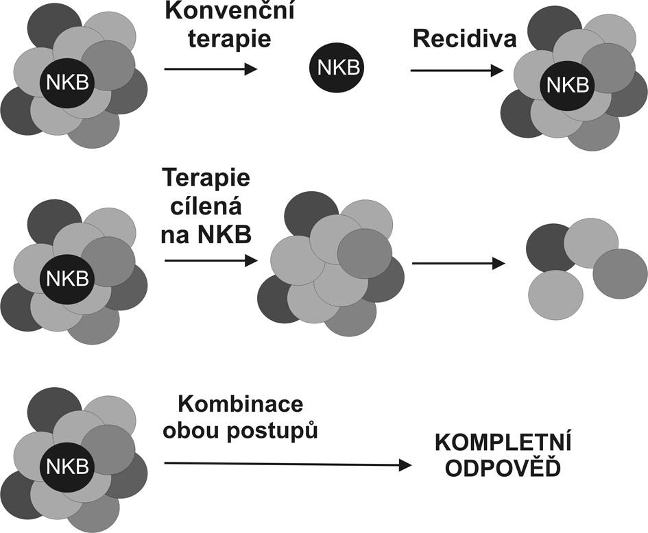 Porovnání stávající terapeutické strategie a strategie namířené proti nádorovým buňkám tumoru Strategie selektivně eliminující nádorové kmenové buňky (NKB) by sice v okamžitém efektu nevedla k omezení masy nádorových buněk, poskytla by však definitivní řešení v podobě odstranění prvotní příčiny nádorového růstu. Nádor bez svých kmenových buněk by neměl být schopen dlouhodobé existence (volně podle Woodwardové 2005). Fig. 2. Comparison of the current therapeutic strategy and the anti-tumorous cell strategy Selective elimination of the tumorous stem cell (NKB) would not immediately result in reduction of the tumorous mass, however, it would provide a definitive solution, removing the original causative factor of the tumorous growth. Any tumor with its stem cells removed, is not expected to survive in a long run. (according to Woodward, 2005).