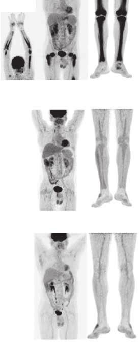 Srovnání akumulace fluorodeoxyglukózy při PET-CT vyšetření před léčbou, v průběhu léčby a 4 roky po ukončení léčby
