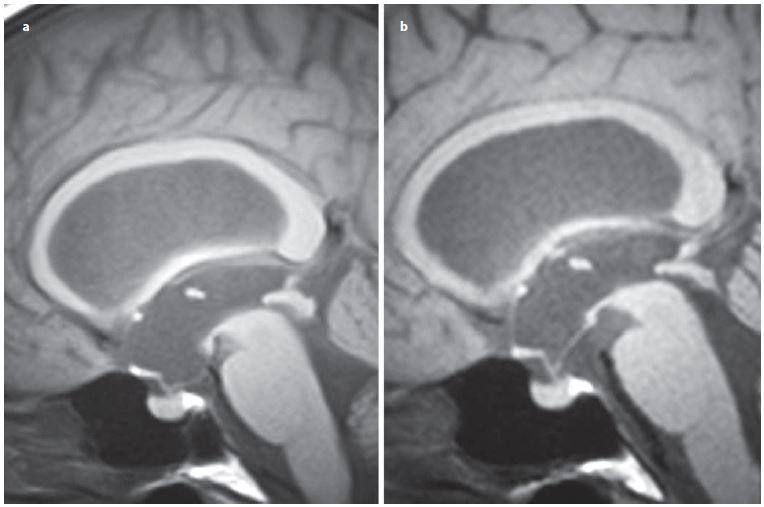Vyjádřený bowing III. komory u pacientky se stenózou mokovodu (a), úprava tvaru III. komory po úspěšné ETV (b).