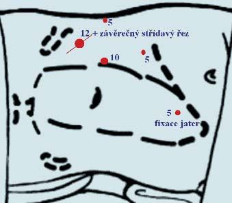 Laparoskopická nefrektomie vpravo. Nejčastější námi užívané rozložení 4 portů a fakultativní 5. port k fixaci jater.