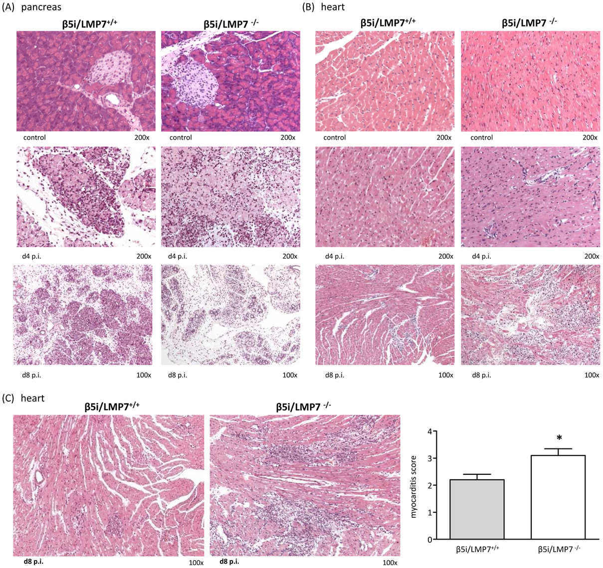 Severe acute CVB3-myocarditis in IP-deficient mice.