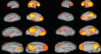 Vývoj implicitní sítě od dětství do dospělosti (11): sloupce zleva doprava: 1. řada: novorozenci levá hemisféra zevní plocha 2. řada: první rok života levá hemisféra vnitřní plocha 3. řada: druhý rok života pravá hemisféra zevní plocha 4. řada: dospělí lidé pravá hemisféra vnitřní plocha