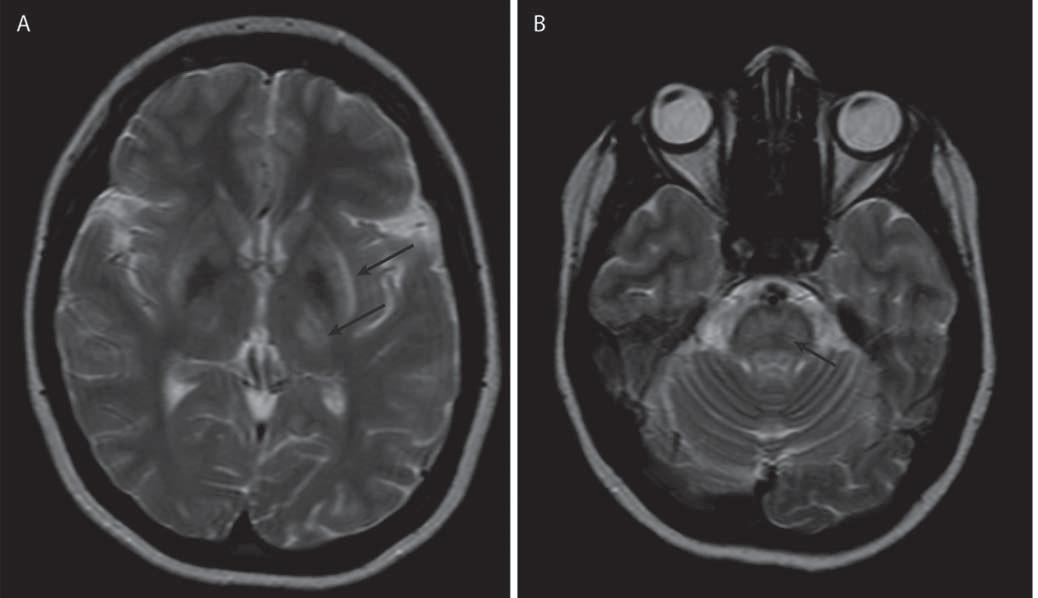 Příklad současného postižení bazálních ganglií a mozkového kmene u jednoho pacienta. Obr. 2a) Šipky označují hyperintenzity v thalamu, striatu a claustru spolu s hypointenzními změnami v globus pallidus, T2 vážený obraz. Obr. 2b) Šipka označuje hyperintenzní změny v pontu v T2 váženém obrazu.
