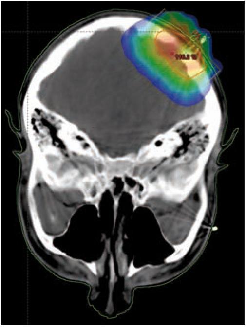 Infiltrace kalvy, izodózní plán, rozložení dávky v nádoru.