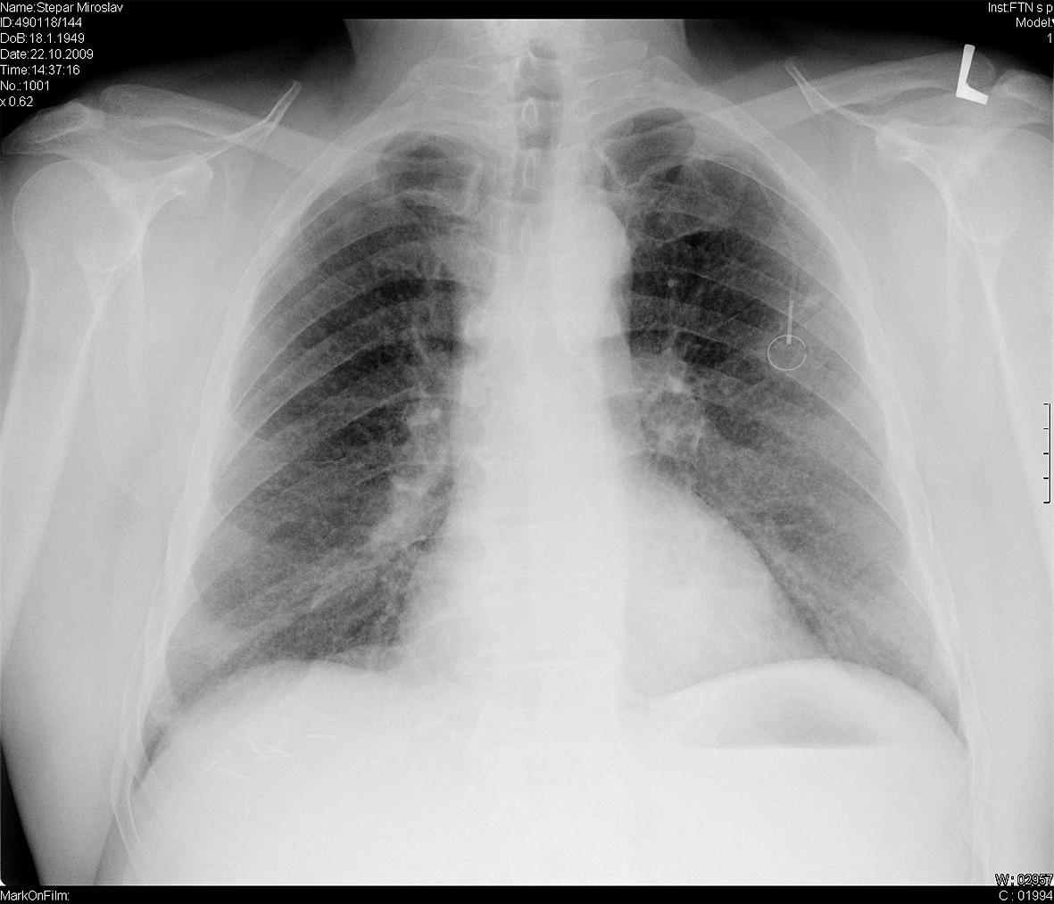 Zadopřední skiagram hrudníku u 60letého muže po resekci ca rektosigmatu a adjuvantní chemoterapii – mikronodulární stíny v obou plicních polích, vlevo stín portu