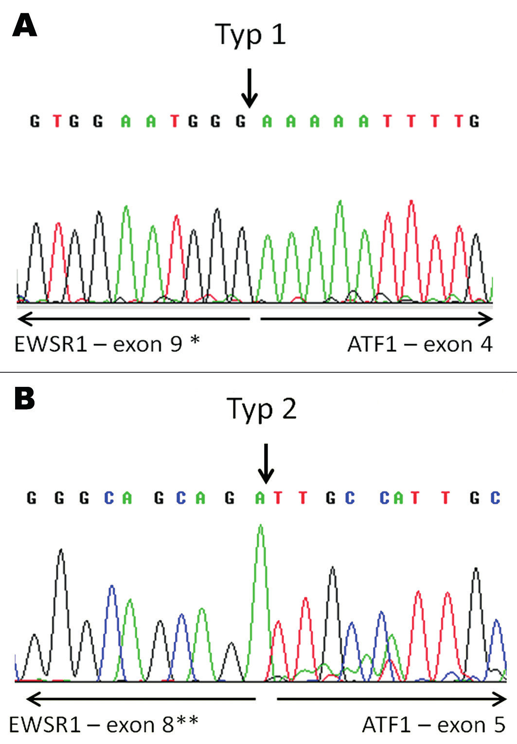 Konfirmace průkazu fúzního transkriptu EWSR1-ATF1 pomocí sekvenování. V tumoru nalezeny fúzní transkripty typu 1 (A) a typu 2 (B). Šipky vyznačují místa fúze.