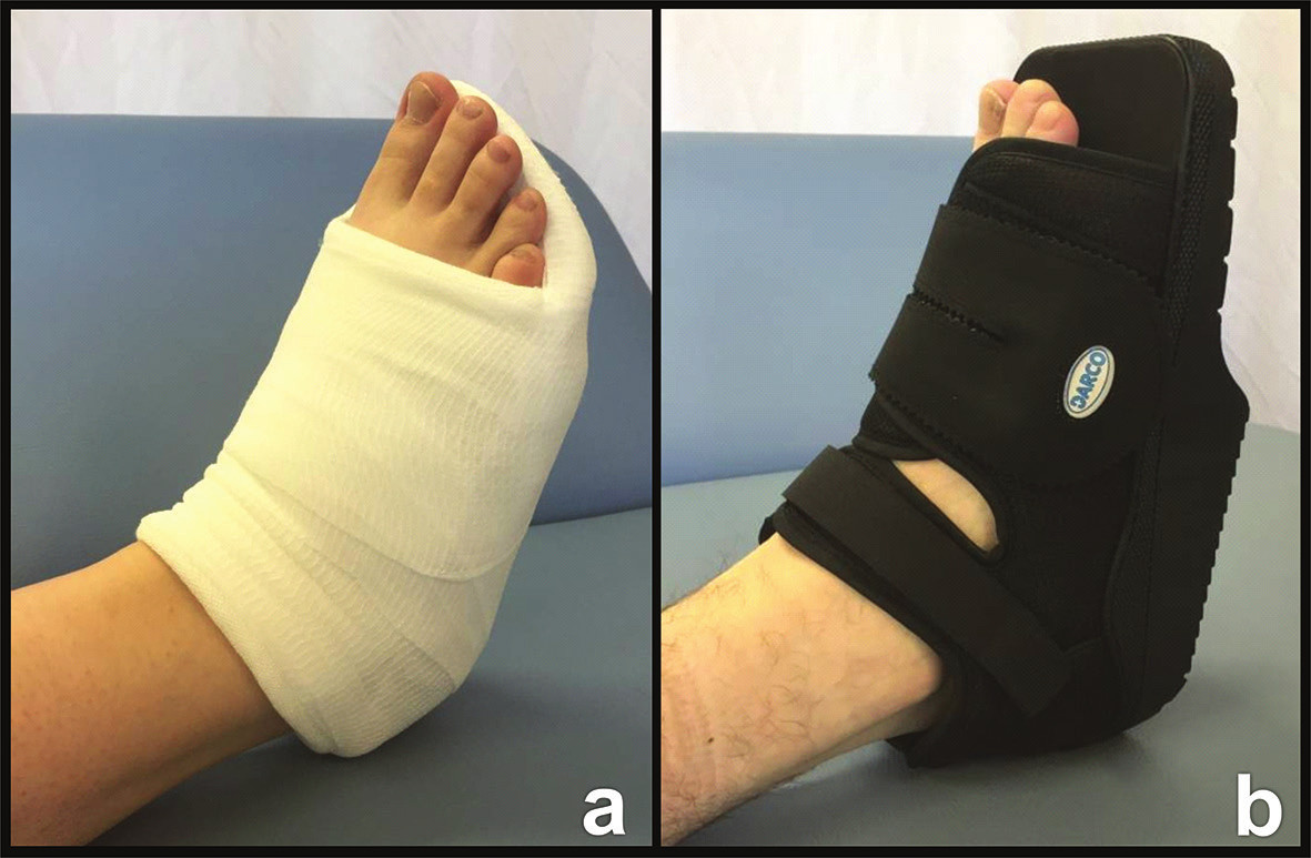Možnosti fixace nohy a − Essex-Loprestiho střevíc; b − Barouk bota. Fig. 5: Options of foot fixation a− Essex-Lopresti shoe; b − Barouk boot.