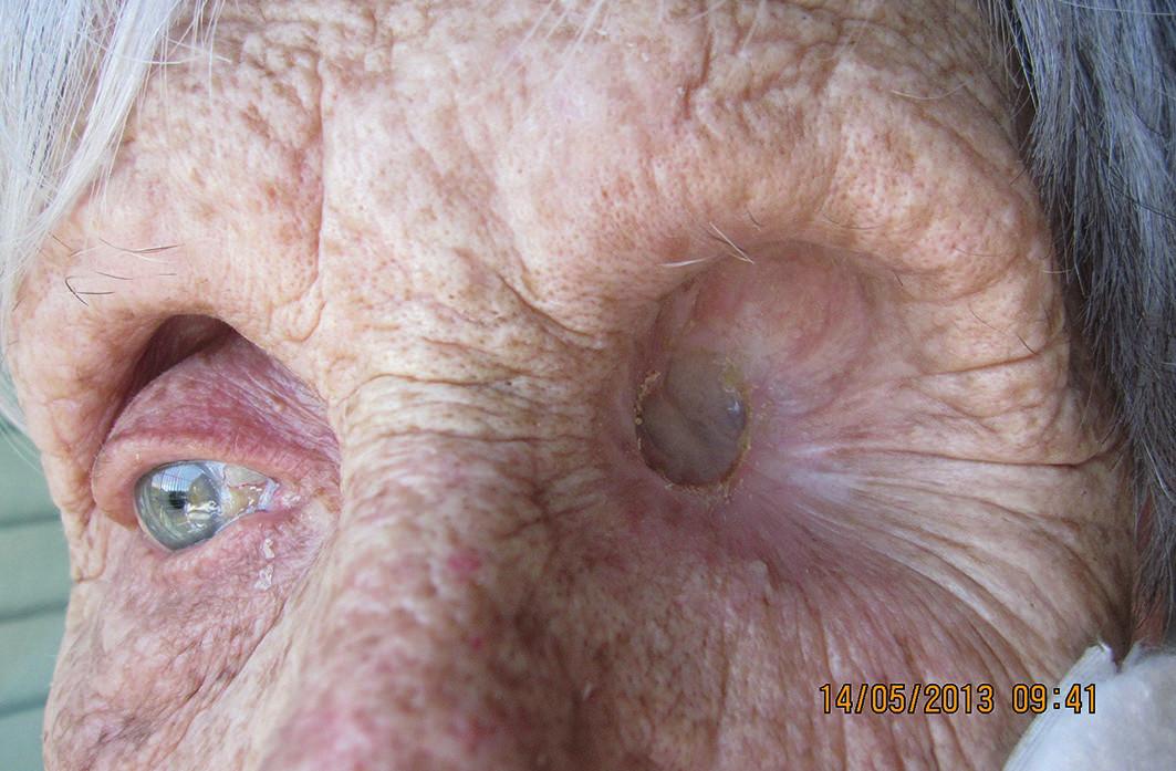 Detail očnice 1 rok po exenterácii (5/2013), bez recidívy malígneho melanómu
