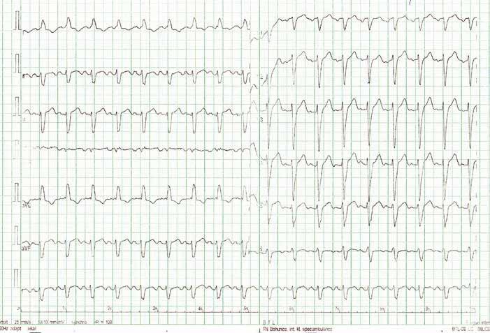 EKG s nově zjištěným blokem levého Tawarova raménka v roce 2013.