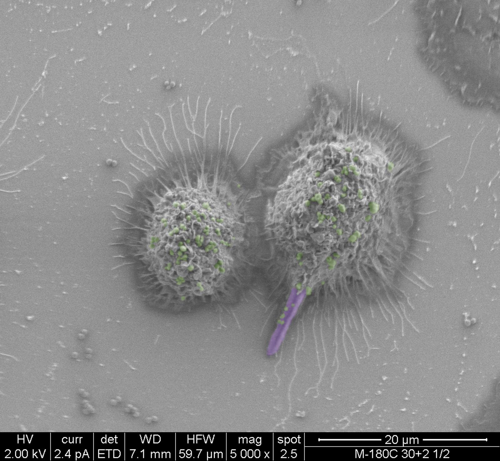 False-colored scanning electron micrographs depicting the co-phagocytosis of <i>C</i>. <i>albicans</i> and <i>S</i>. <i>aureus</i> by murine macrophages.