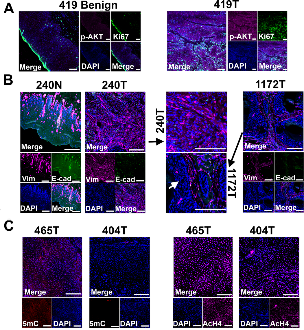 """Tissue immunofluorescent staining supports conclusions from RNA-seq studies shown in <em class=""""ref"""">Fig 3</em>."""