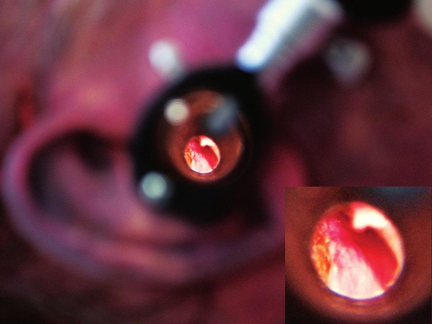 Otoskopické vyšetření s nálezem krevního výronu na ušním bubínku.