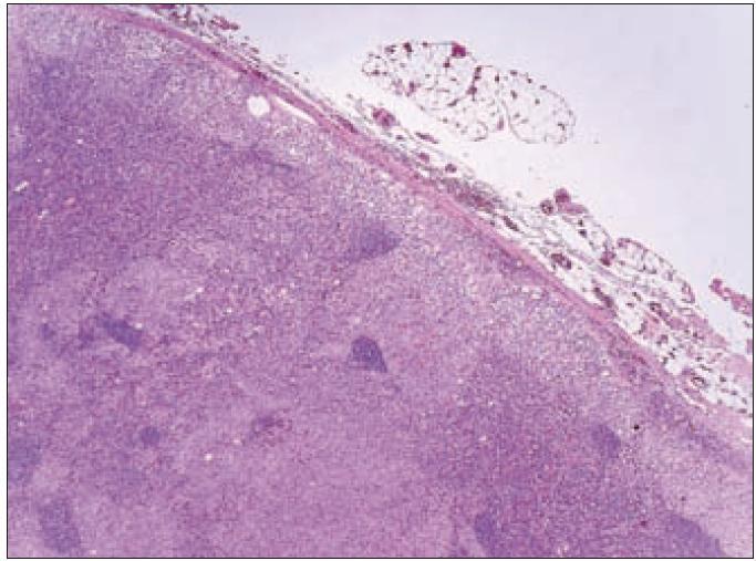 Přehledné zvětšení řezu lymfatickou uzlinou. Světlejší okrsky pod pouzdrem a v sinusech kory odpovídají histiocytárním infiltrátům LCH, tmavší okrsky představují zachované části lymfatické uzliny.