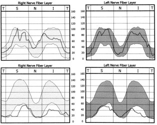 Analýza vrstvy nervových vláken obou očí metodou SLP zobrazuje tloušťku této vrstvy v podobě křivky umístěné na pozadí pásma normy – normálně má dvojvrcholový průběh (A); u našeho pacienta byla zjištěna difuzně redukovaná vrstva s hodnotami pod pásmem normy (B).