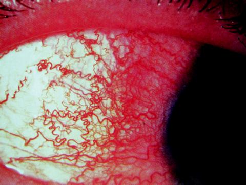 Akutní iridocyklitida
